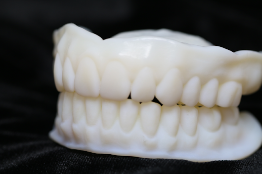 3d Printed Denture Try-in - Stewart Dental Lab