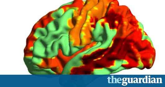 Psychedelic drugs induce 'heightened state of consciousness', brain scans show | Science | The Guardian