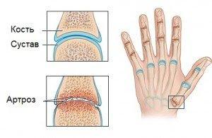 Артроз суглобів пальців рук