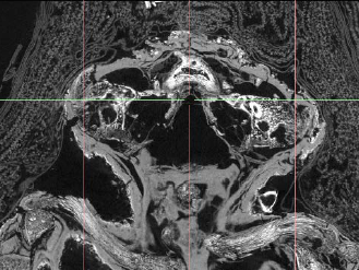 Micro tomografía computerizada de momia fetal egipcia con anencefalia. Foto: Western University Canada