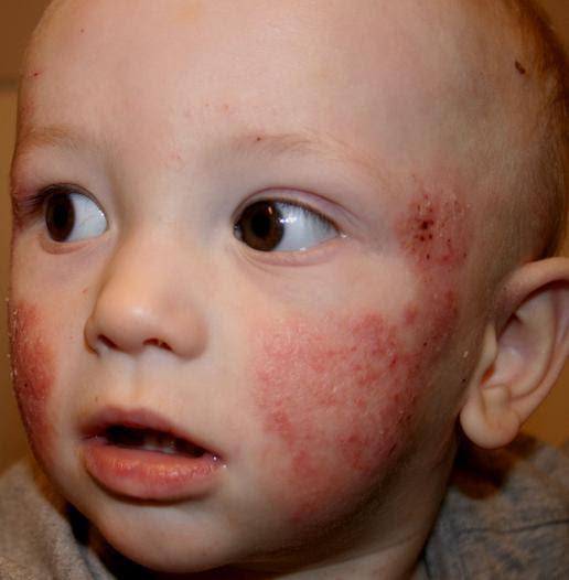 heat rash on baby face. heat rash baby face.
