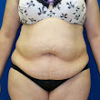 Tummy Tuck Before and After Pictures Augusta, Evans, GA