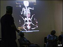 El equipo médico que realizó la operación, antes de su ingreso a cirugía