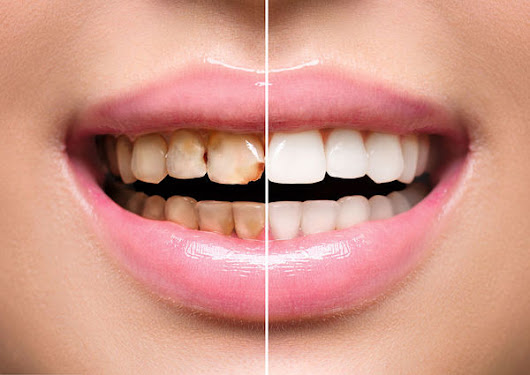 Are Veneers the Best Solution for Your Smile Makeover?