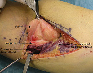 Intraoperative photo showing the median nerve ...