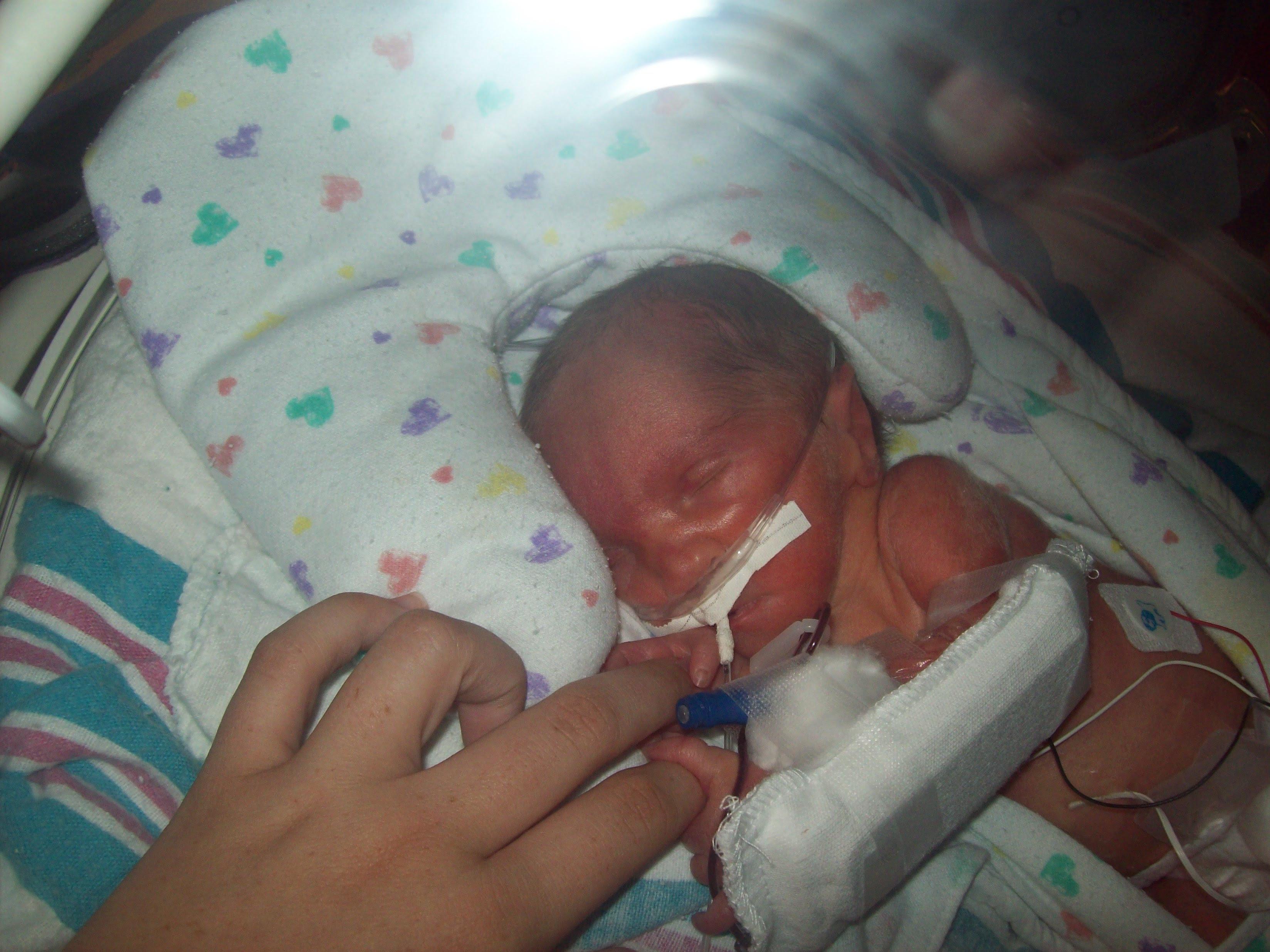 Premature Baby Of 7 Months - Newborn baby