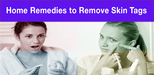 Home Remedies to Remove Skin Tags - Getting Rid of Skin Tags