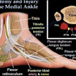 Diagnosis of Ankle Pain — OrthopaedicPrinciples.com