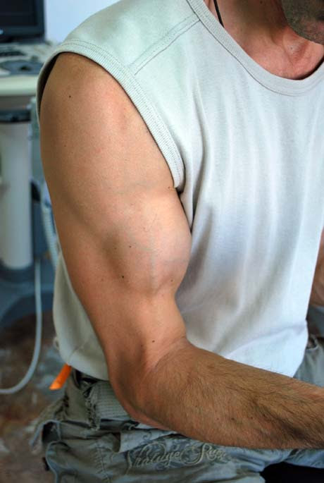 The Main Causes and Correct Treatment of a Biceps Tendon Rupture