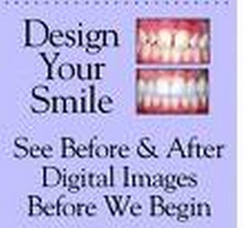 best aesthetic dentist chennai