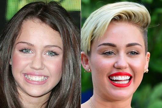 PHOTOS: Celebrities Who've Had Dental Work Done