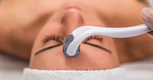 Benefits and Side Effects of Microneedling: Cost, Results, and More