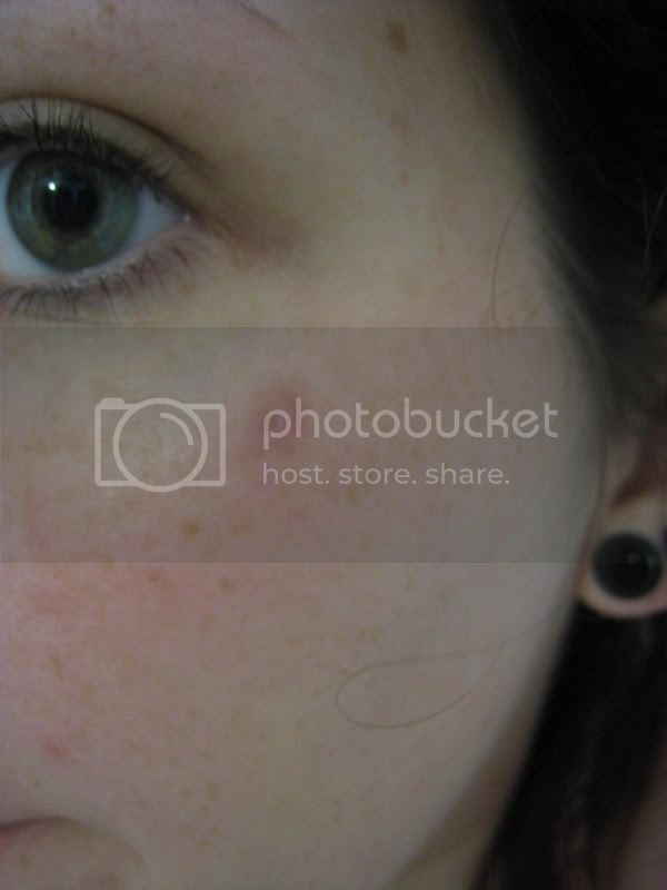 A Newbies Guide To Dermal Implants