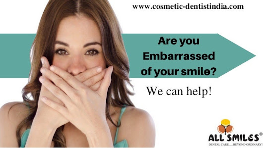 Invisible Braces In Bangalore | Teeth Straightening In India