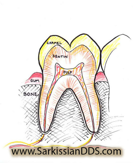 Root Canal - Prevent at all Costs