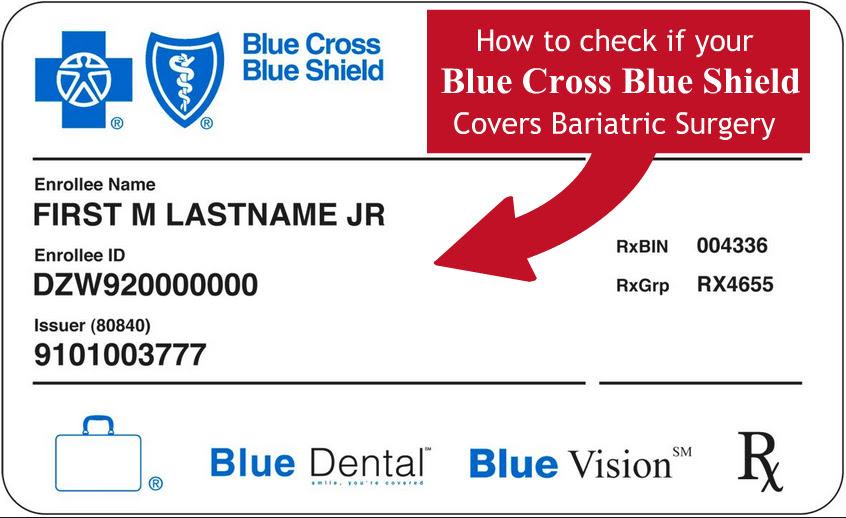 Anthem Blue Cross Blue Shield Insurance for Bariatric ...