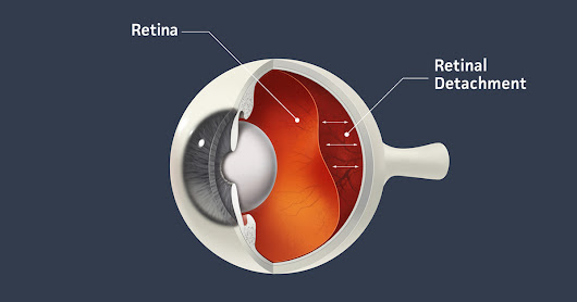 Detached Retina - Know the Signs and Symptoms