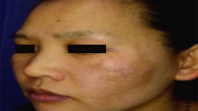 How Can Melasma Laser Treatments for the Upper Lip in ...