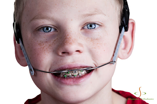 What Is Orthodontic Headgear and How is it Used?
