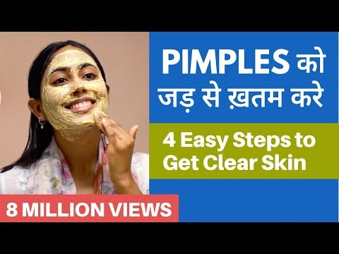 PIMPLES को बोलो Goodbye | It's time to get CLEAR & SPOTLESS SKIN!