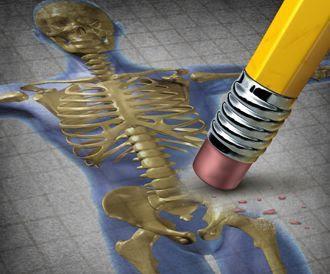 علاج هشاشة (هشهشة) العظام بأحدث طرق 2014