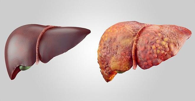 Số người mắc ung thư gan ở Việt Nam rất cao: 7 yếu tố nguy cơ cũng nên biết để phòng - Ảnh 1.