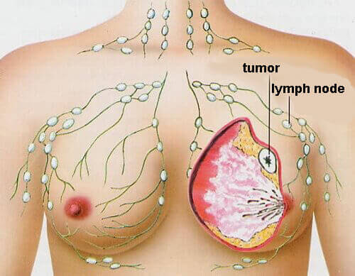 4 Most Common Types of Cancer in Women - Step To Health