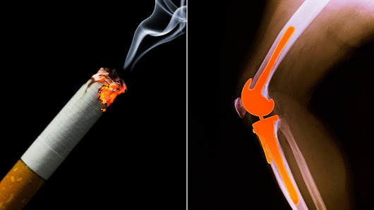 Smokers Prone to Problems After Joint Replacement: Study