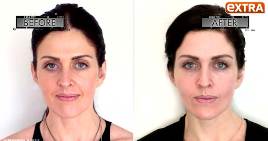Tracey's Tricks & Trends: How to Get a Painless 'Facelift'