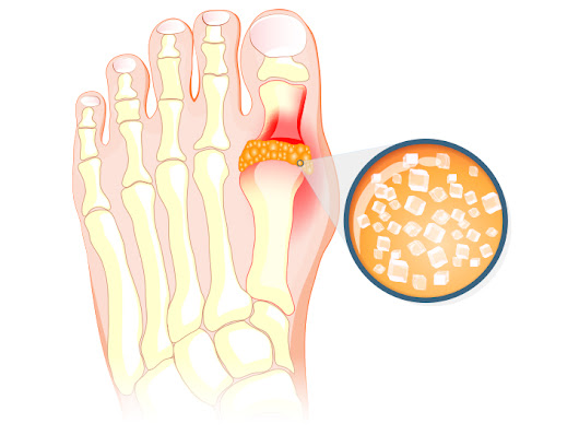 For Gout, a Triad of Risk Factors