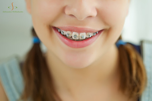 What Are Some Options for Financing Orthodontic Treatment?