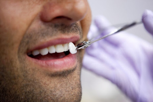 Porcelain Dental Veneers | Treatment, Recovery & Cost Info