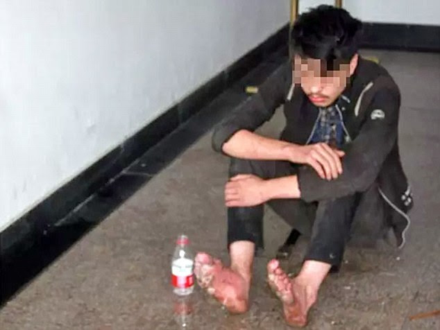 Addicted to games: The 19-year-old was found lying on grass unconscious with rotting feet in Hangzhou