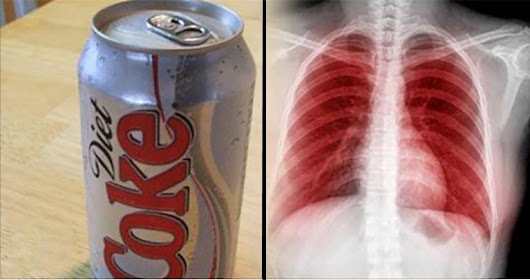 This Is What Happens to Your Lungs, Brain, Kidneys, Teeth and Mood When You Drink Diet Soda