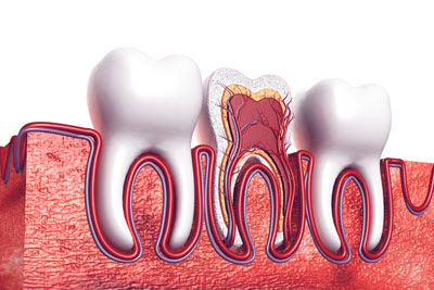 A Root Canal Dentist in Lincroft: Explaining the Basics of a Root Canal