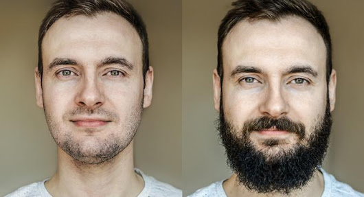 All you need to know about facial hair transplants or beard transplants