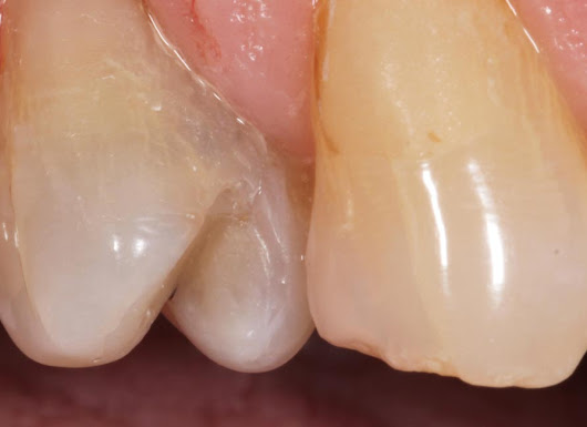 Replacement White Composite Fillings