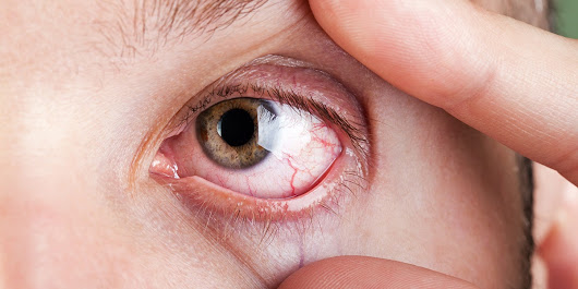 Scratchy Eyes: 7 Things That Can Cause This Irritating Symptom | SELF