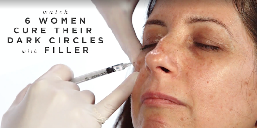 Is Filler For Dark Circles Too Good To Be True?