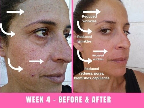 Led Light Therapy For Skin Benefits