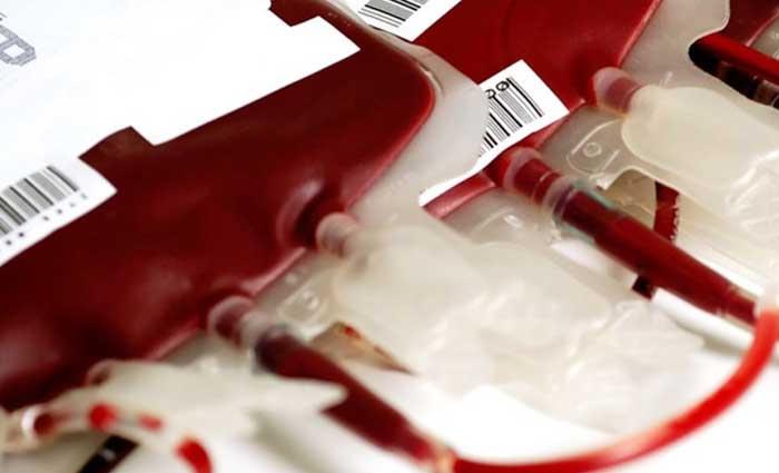 Άρτα: Εθελοντική αιμοδοσία την Τετάρτη 31 Ιουλίου στο ΚΕΝ Άρτας