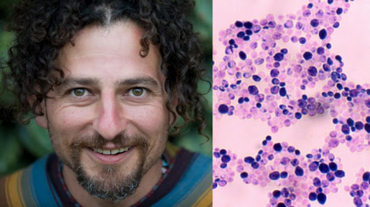 David Wolfe on Candida: How To Fight The Most Unpleasant Houseguest - DavidWolfe.com