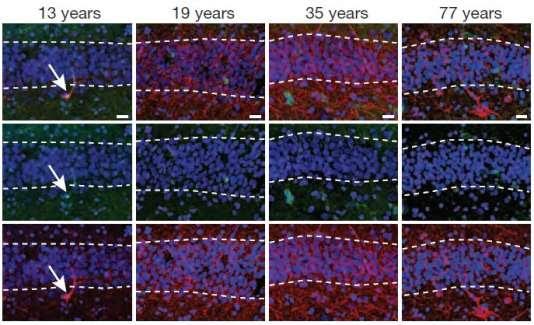 Marquages moléculaires d'échantillons d'hippocampes humains à différents âges. Les neurones jeunes (flêches blanches) ne sont plus observés après 13 ans.