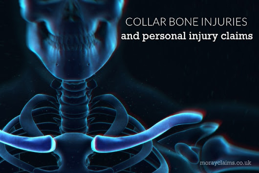 Collar Bone Injuries and Personal Injury Claims