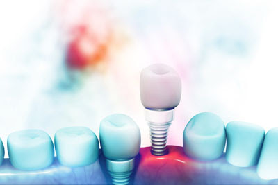 Why You Should Visit an Implant Dentist to Replace Your Tooth