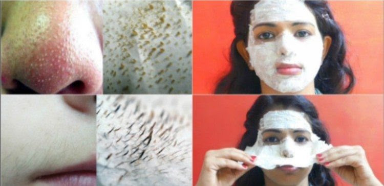 This All-Natural Ingredient Gets Rid of Facial Hair and Blackheads