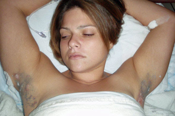 Laser Hair Removal Armpits Get Tattoo Removal Method