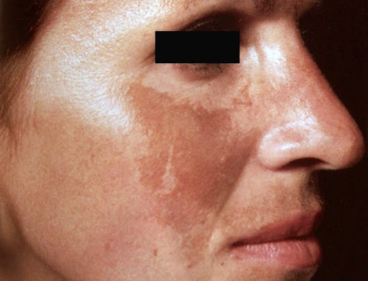 Melasma | Causes, Treatment, Affects | Skin of Color Society