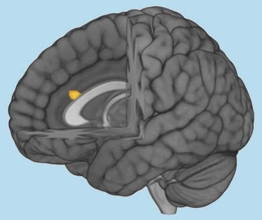 Area of the Brain Affected by Autism Detected - Neuroscience News