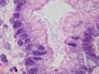 histology of gastric mucosa